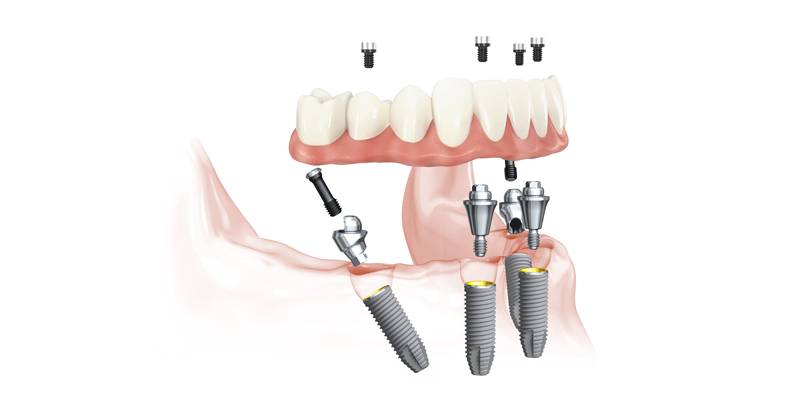 All in 4 : Prothese fixe sur 4 implants basals