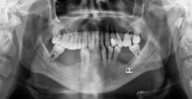 dents bougent après appareil dentaire